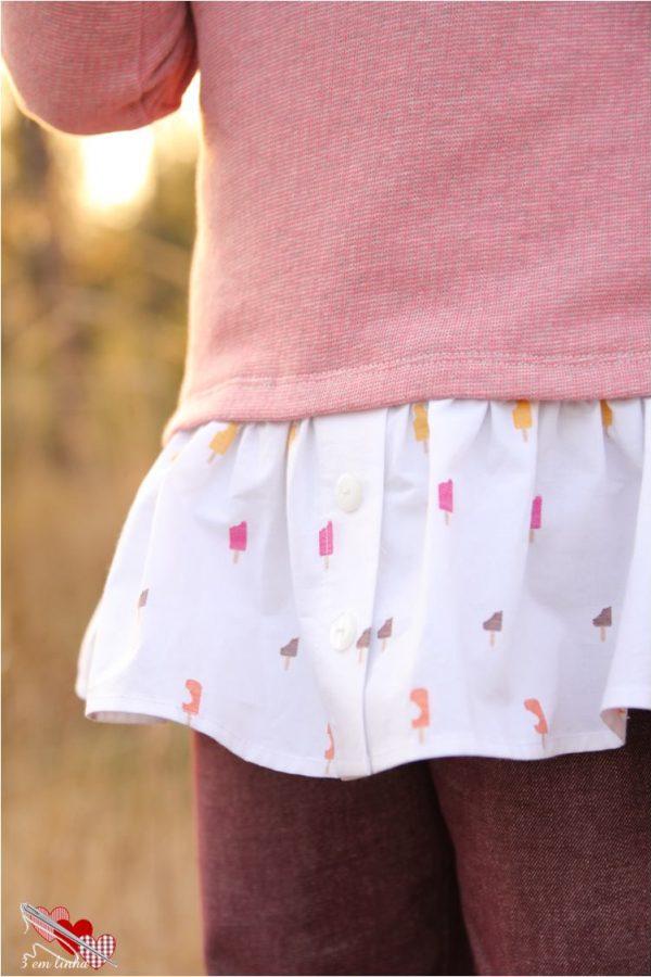 MLS Button skirt